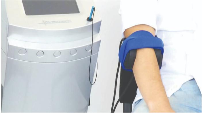 טיפול בפולסים אלקטרומגנטיים